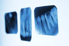 Stomatologiczni promieniowanie rentgenowskie wizerunki na białych panel Obrazy Stock