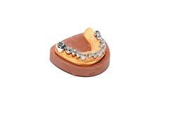 stomatologiczny dentures lejni tynk zdjęcie stock