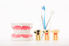 Stomatologiczny model, zęby modeluje, stomatologiczny narzędzie Zdjęcie Stock