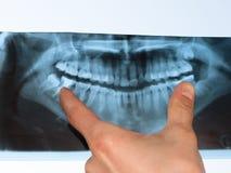 stomatologiczny panoramiczny promień x Fotografia Stock