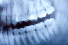 stomatologiczny promień x obraz royalty free