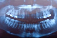stomatologiczny promień x Fotografia Stock
