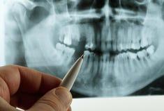 Stomatologiczny promieniowanie rentgenowskie Obrazy Royalty Free