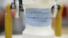 Stomatologiczny prosthesis w górę zdjęcie wideo