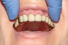 Stomatologiczny przywrócenie przegnili korzenie zęby z ceramicznymi koronami obsada wysyła dentystykę zdjęcie royalty free