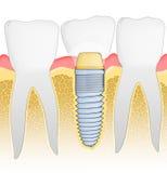 stomatologiczny wszczep ilustracji