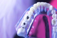 Stomatologiczny zębu gnicia problem zdjęcia stock
