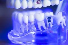 Stomatologiczny zębu korzenia nerw zdjęcie royalty free
