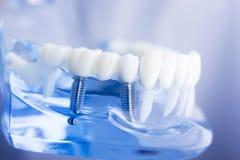Stomatologiczny ząb dentystyki model Zdjęcie Royalty Free