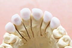 Zircon zęby zdjęcie stock