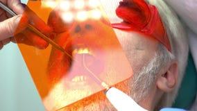 Stomatologist используя ультрафиолетовый свет сток-видео