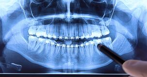 Stomatologist analysing dental radiography with braces
