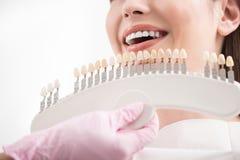 Stomatologist, das nach rechts Implantate zum Kunden wählt lizenzfreie stockfotos
