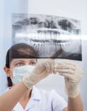 Stomatologist Pointing At Jaw Xray Royalty Free Stock Photos
