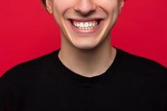 Stomatology advertising. White teeth closeup Royalty Free Stock Images