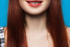 Stomatology commercial closeup. Woman white teeth Royalty Free Stock Photos