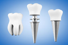 Stomatology concept. Tooth Implant with Tooth Stock Photos