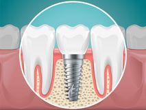 Free Stomatology Illustrations. Dental Implants And Healthy Teeth Stock Photography - 114118922