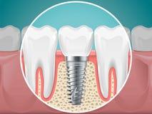 Stomatology ilustracje Stomatologiczni wszczepy i zdrowi zęby ilustracja wektor