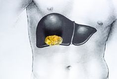 Stone in the liver, schematic image, a large gallstone, the result of gallstones. Stone in the liver, a schematic image, a large gallstone, the result of royalty free stock photos