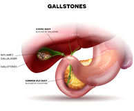 Stones in the Gallbladder and duct Stock Images