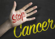 Stop Cancer educacional message on blackboard Royalty Free Stock Photos