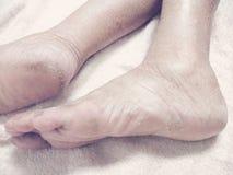 stopa zdjęcie royalty free