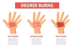 Stopni oparzenie skóra Infographic ilustracja wektor