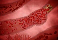Stoppad till artär med trombocyt och kolesterolplatta, begrepp för den vård- risken för fetma eller banta och näringproblem Arkivfoton