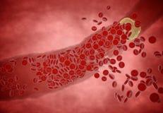Stoppad till artär med trombocyt och kolesterolplatta, begrepp för den vård- risken för fetma eller banta och näringproblem Royaltyfria Foton