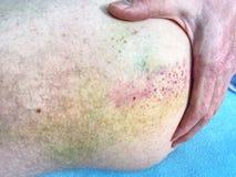 Stort blåmärke på kroppen Smärtsam arbetsolycka Vänster sårad kroppsida, royaltyfri foto