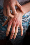 Stosować emollient suszyć płatkowatą skórę w traktowaniu łuszczyca, egzema i inni suchej skóry warunki jak, Fotografia Stock