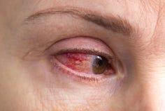 Sträng ögonskada med blod royaltyfri bild