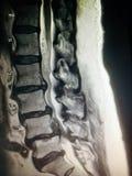 Sträng för stenosispatologi för ryggrads- kanal examen för mri fotografering för bildbyråer