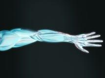 Stråle x av den mänskliga armen Arkivbilder