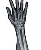 Stråle x av den mänskliga handen Arkivbild