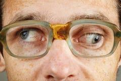 Strabismus - eye closeup Stock Photos