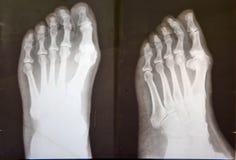 Strahl x von weiblichen Füßen Lizenzfreies Stockbild
