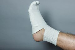 Straight leg with a big hole in the sock Royalty Free Stock Image