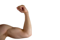 Strained Biceps. The picture shows an arm with a strained biceps royalty free stock photography