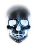 Strasznego promieniowania rentgenowskiego błękitna neonowa czaszka na bielu Obrazy Stock