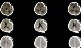 strenge depressiebreuk van een schedel stock foto