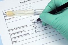 Streptobakterien-Kultur-Test Lizenzfreie Stockfotos