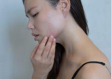 Stressad kvinna som ut bryter med akne på hennes framsida royaltyfria foton