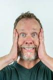 Stressad man i skägg med galet uttryck Arkivfoto