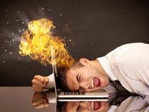 Stressade affärsmannens huvud bränner royaltyfri foto