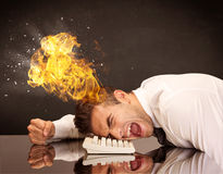 Stressed business man's head is burning Royalty Free Stock Images