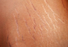 Stretch marks on the body. Of a pregnant woman Stock Photo