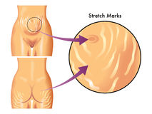 Stretch marks. Medical illustration of symptoms of stretch marks Royalty Free Stock Photography