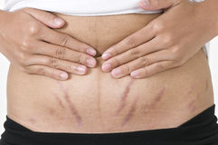 Stretch marks, pregnancy. Picture of stretch marks on a woman's abdomen Stock Photos